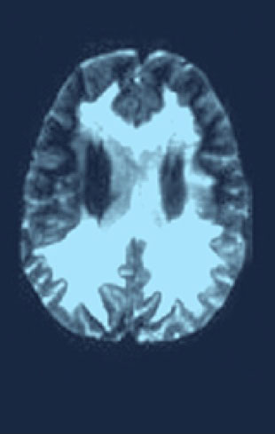 Scan of brain experiencing major functional disability